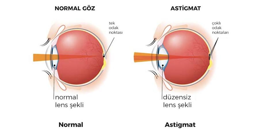 Astigmatlı Göz