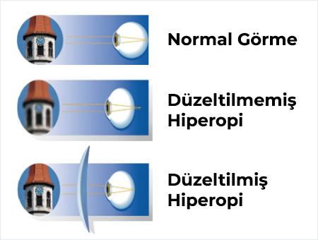Hipermetropi Tedavisi