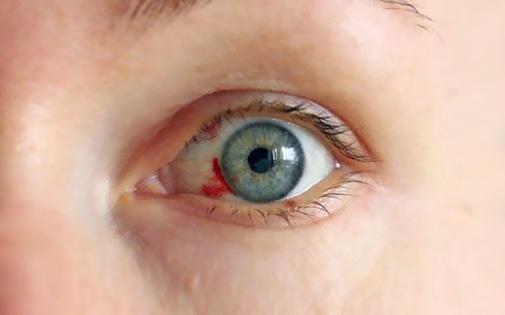Göze kan oturması neden olur?