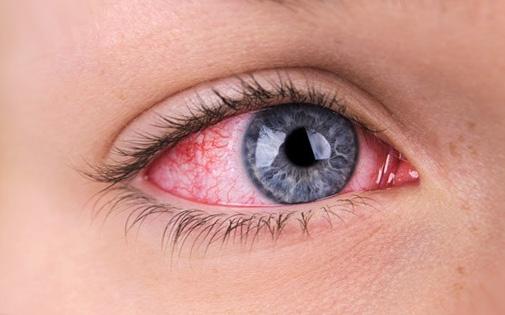 Kırmızı Göz Ayırıcı Tanısı